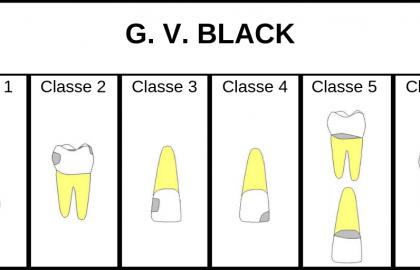 CLASSIFICAZIONE DELLA LESIONE CARIOSA SECONDO BLACK