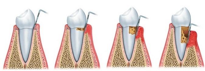Parodontite cause, sintomi e rimedi